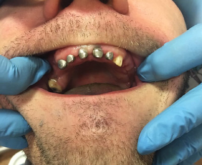 Stump tabs on the front teeth